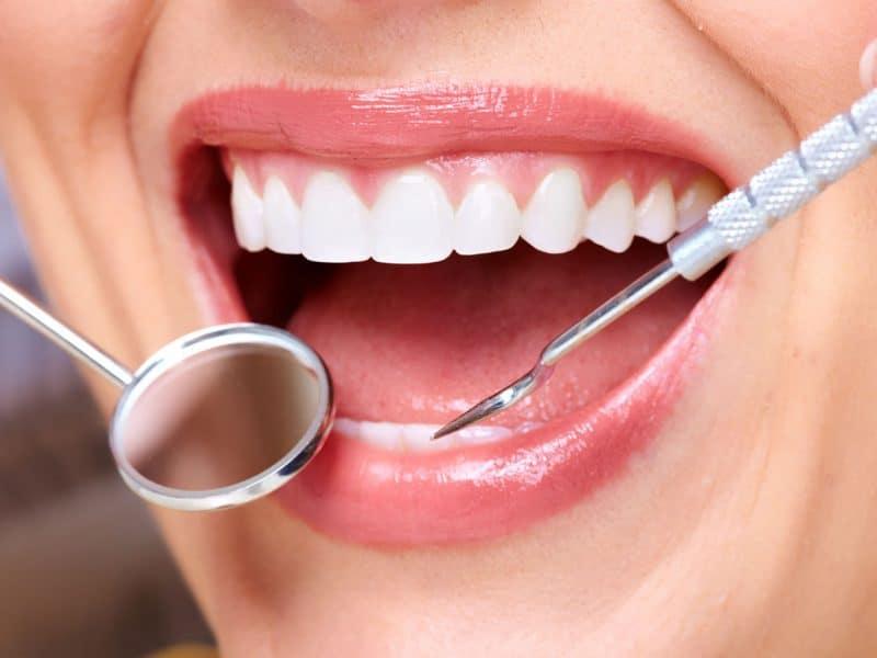 Eryaman Diş Beyazlatma