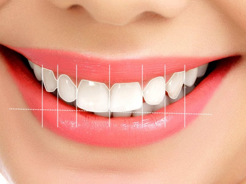 Dental İmplant Kullanmanın Avantajları Nelerdir?