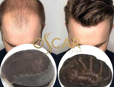 Kellik Tedavisi İçin En Doğal Protez Saç Çeşitleri Oscar Hair Desing Farkıyla!
